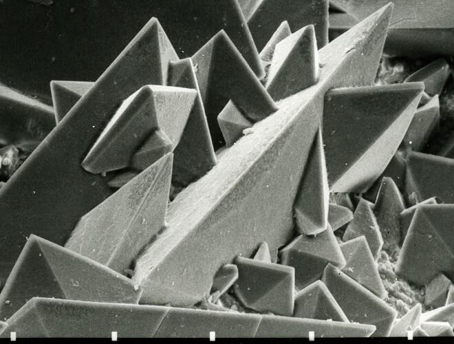 Nierenstein unter dem Rasterelektronenmikroskop